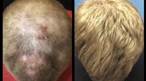Eight months after starting on an arthritis drug he had regrown hair.