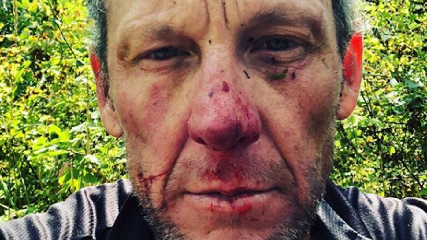 Lance Armstrong gets 'head checked' at hospital after cycling tumble