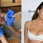 Chrissy Teigen is having breast implant removal surgery