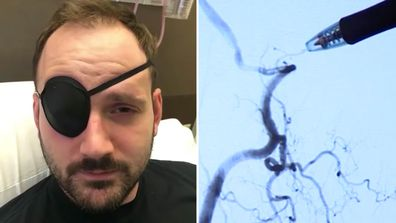 Josh Hader, stroke victim