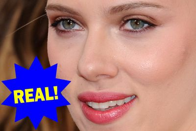 Scarlett's naturally plump lips are the most requested look by copycat plastic surgery patients in the US.