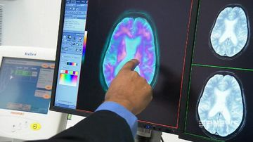 Blood test could detect signs of Alzheimer's in younger patients