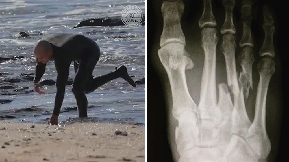 US surfer Kelly Slater breaks foot during WSL event at J-Bay in South Africa