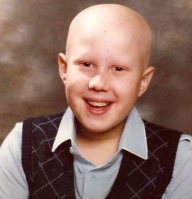 Little Britain star Matt Lucas opens up about battle with alopecia.