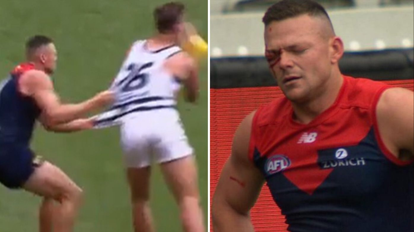 Tom Hawkins elbow leaves Melbourne gun Steven May with gruesome eye injury, potential concussion