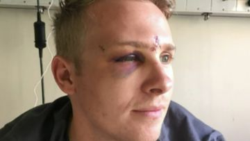 Teen pleads guilty to 'shocking' attack on off-duty policeman