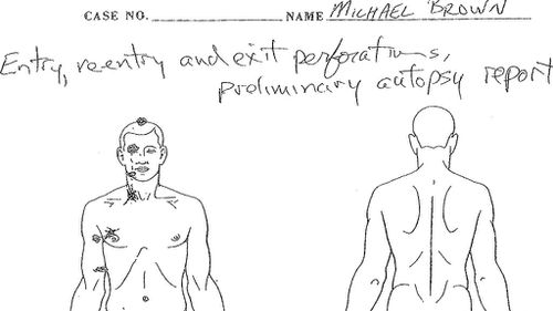 A detail from a preliminary autopsy showing the entry, re-entry and exit wounds from the six bullets that killed Michael Brown. (Dr Michael M. Baden)