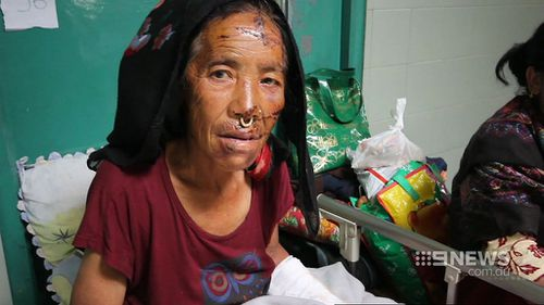This woman is being treated in a Kathmandu hospital. (9NEWS)