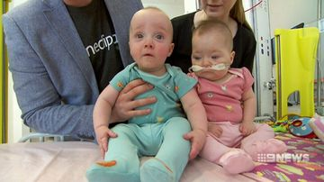 Girl born third the size of brother reunited with twin