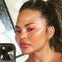 Chrissy Teigen updates fans on breast implant removal surgery