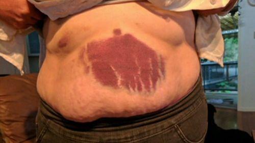 Jennifer Toohey suffered bruising.