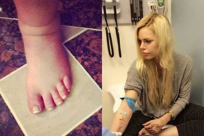 Sophie Monk broke down in tears on the the phone to her radio co-hosts as she was stranded in Dubai due to a bizarre swollen ankle. <br/><br/>While her foot had seen better days, the blonde babe still looked gorgeous in all her sick selfies. <br/><br/>Way to make illness look hot, Soph! (Oh, she's totally fine now BTW) <br/>