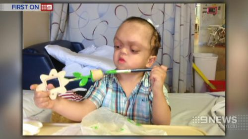 Pfeiffer syndrome is a rare condition that stops the skull from properly developing. (9NEWS)
