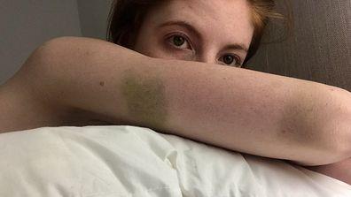 Tamara bruises