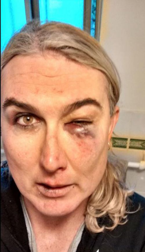 "After the attack Ms McCarthy tweeted these photos of her injuries saying she was ""attacked for being trans"". (Supplied)"