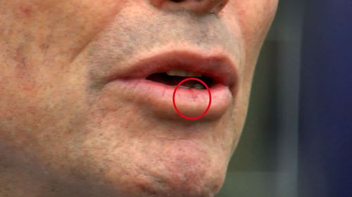 Mr Abbott can be seen with a small cut to his bottom lip.