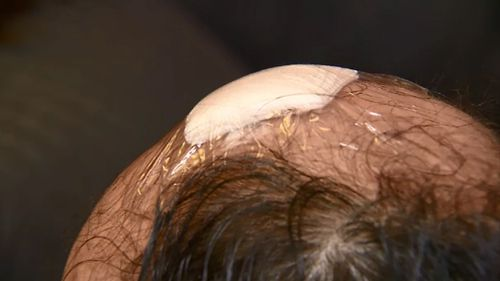 The father was left with wounds on his head after being bashed with a baseball bat. (9NEWS)