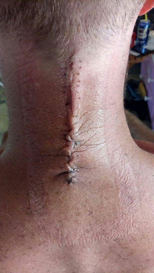 The 43-year-old needed a spinal fusion. (Supplied)