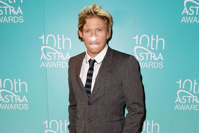 Imagine Shane Warne played by Faramir from <i>The Lord of the Rings</i>. Who wouldn't think that was a good idea? Nobody. Besides, David's nose was practically made to be smothered in zinc.