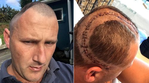 Benjamin Lightbody has endured five operations to replace a large piece of his skull with an implant. Because of the implant's size, he has suffered a variety of complications and ongoing pain.