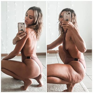 The body image activist has been vocal about the normalisation of cellulite, dimples and stretch marks.