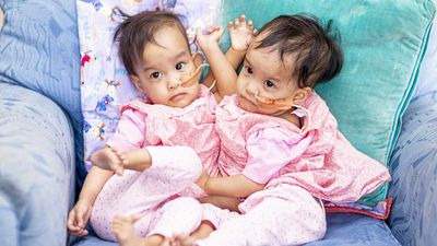 Separated conjoined twins remain close in Melbourne hospital