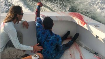 A shark attack victim was lucky enough to be saved off the coast of Florida by a nearby fishing boat, full of nurses.