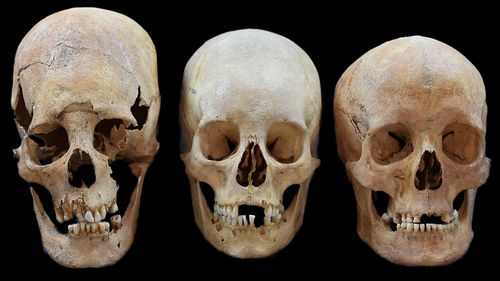 From left: Strong, intermediate and non-deformed skulls from the Early Medieval sites Altenerding and Straubing in Bavaria, Germany. (AP).