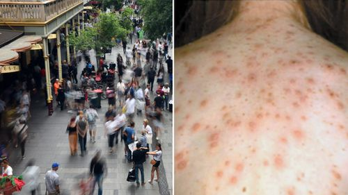 An earlier case of measles broke out in Sydney's Pitt Street mall in late 2018.