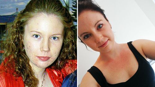 Alexa Finlayson is one of Roaccutane's success stories. She is pictured here as a Perth teenager struggling with acne, and now with clear skin.