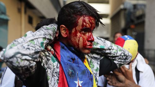 A wounded anti-government protester after street demonstrations in Caracas.