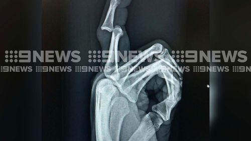 An x-ray scan of Penrith Panthers star Trent Merrin's finger shows the damage done in a horrific injury he sustained during team warm-up preparations. Picture: Supplied.