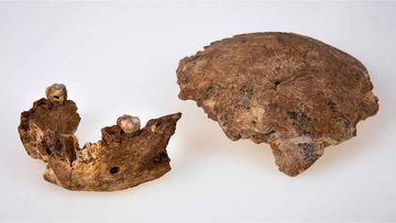 Parts of an ancient human skeleton uncovered in Israel.
