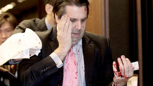 US envoy to South Korea to be released from Seoul hospital after knife attack
