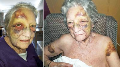 Assault probe after grandma left bruised