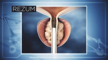 Breakthrough treatment for enlarged prostate arrives in Australia