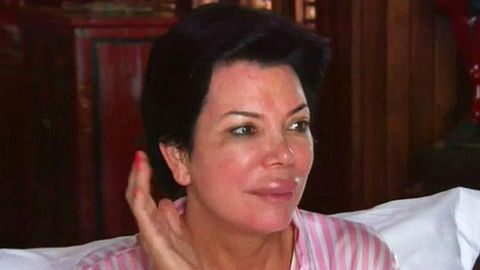 Lip shock: Kris Jenner wakes up with a giant trout pout