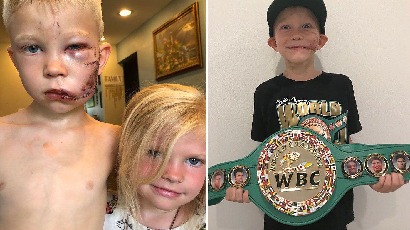 Young dog attack hero awarded Honorary WBC Championship belt