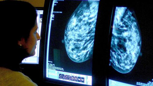 Australian-led study a game-changer for breast cancer survivors