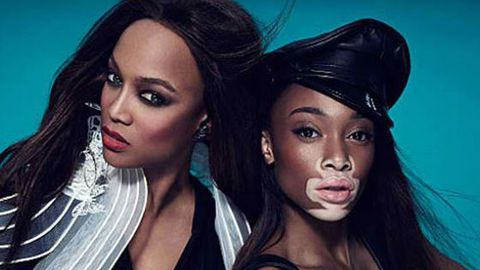 Redefining Beauty Next Top Model Contestant Stuns With Flawed Skin Disease 9celebrity