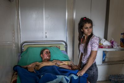 Injured Kurdish Fighter Receives Hospital Visit by Ivor Prickett