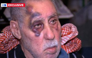 Elderly couple brutally bashed while buying groceries at Aldi