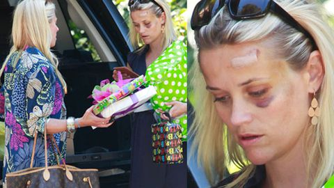 Reese Witherspoon's reveals black eye after being hit by a car