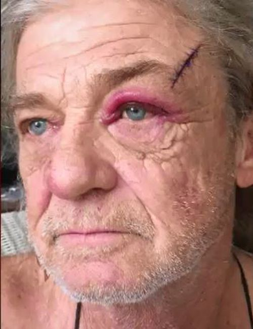 Mr Kulacz suffered minor skin wounds in the robbery, while the attacker remains on the run. Picture: Supplied.