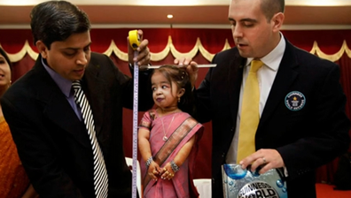 Jyoti Amge has primordial dwarfism, a rare genetic condition.