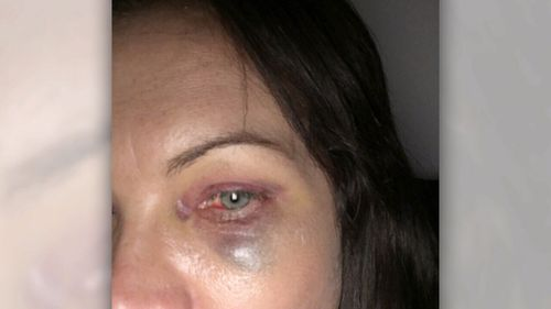 Among Lisa's injuries was a fractured eye socket, which could lead to a loss of eyesight.