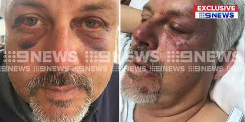 Brian spent the night in hospital after the incident. (9NEWS)