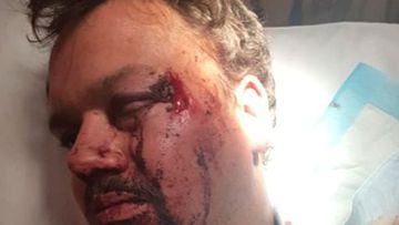 Father attacked with baseball bat and robbed while fishing