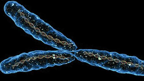 Vanishing Y chromosome linked to Alzheimer's in men