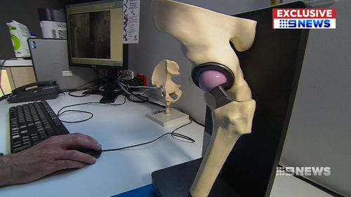 Tens of thousands of Australians who have had a hip replacement currently may be at risk of lesions. (9NEWS)